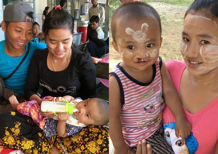 ジャパンハート 国際医療ボランティア ミャンマー活動レポート 口唇・口蓋裂手術ミッション